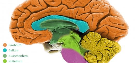 Gehirnschnitt
